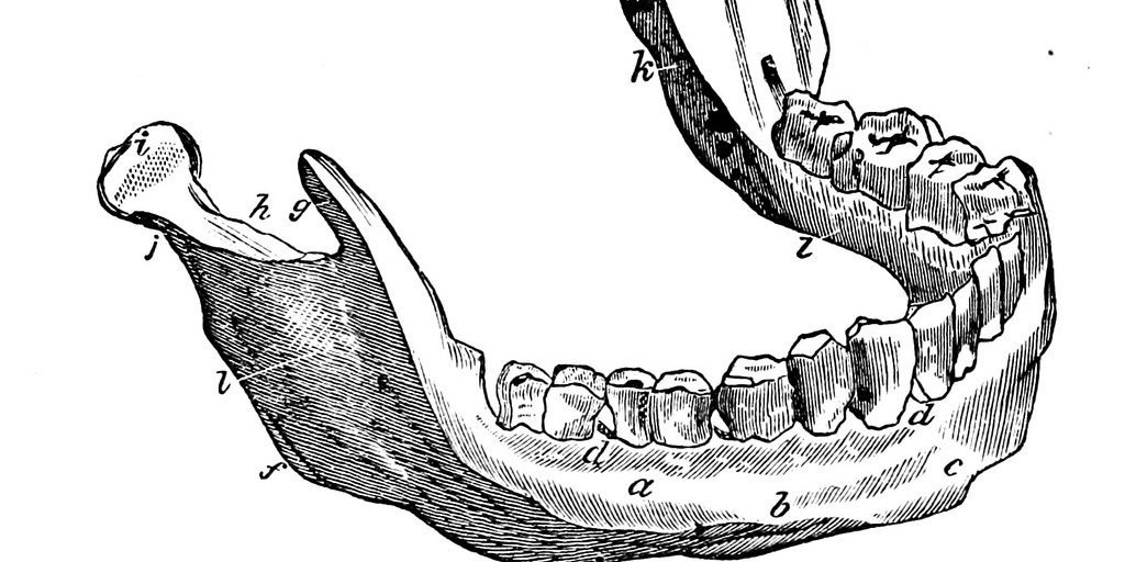 Music in Dentistry Part II: Auditory Bone Conduction